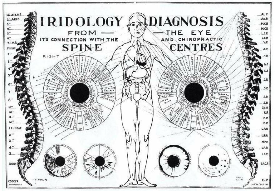 iridologija iridodiagnostika veidotyra